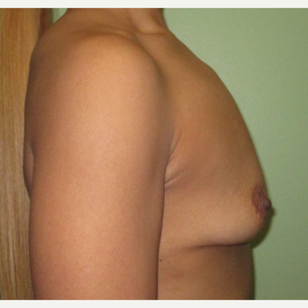 25-34 year old woman treated with Breast Implants before 3423846