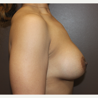 25-34 year old woman treated with Breast Implants after 3423846