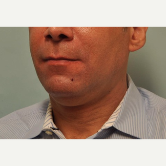 45-54 year old man treated with Kybella before 3528564