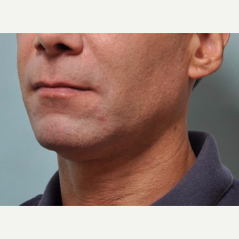 45-54 year old man treated with Kybella after 3528564