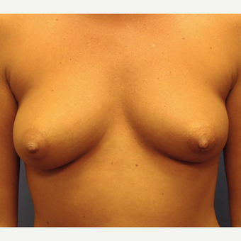 25-34 year old woman treated with Breast Implants before 3669526