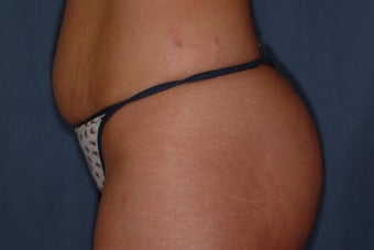 25 Year Old Female with Mini-Tummy Tuck  before 1180751