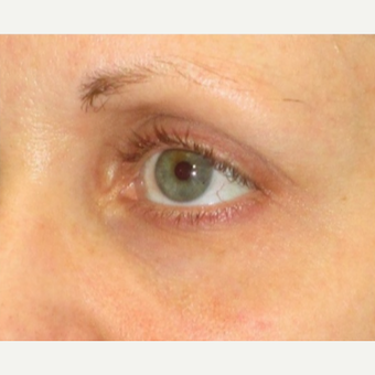 25-34 year old woman treated with Restylane before 3331158