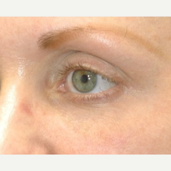 25-34 year old woman treated with Restylane after 3331158