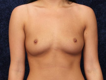 24 Year Old Breast Augmentation before 1128914