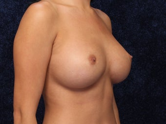 24 Year Old Breast Augmentation 1128914