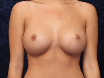 24 Year Old Breast Augmentation after 1128914