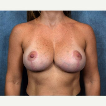 18-24 year old woman treated with Breast Lift after 2132439