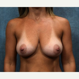18-24 year old woman treated with Breast Lift before 2132439