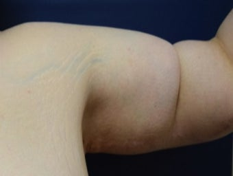 25-34 year old woman treated with Arm Lift after 2988595