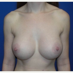 25-34 year old woman treated with Breast Augmentation after 3019091