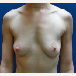 25-34 year old woman treated with Breast Augmentation before 3019091