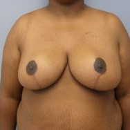 55-64 year old woman treated with Breast Reduction after 3280644