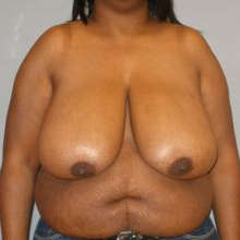 55-64 year old woman treated with Breast Reduction before 3280644