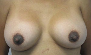 Breast Augmentation after 3054801
