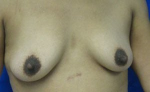 Breast Augmentation before 3054801