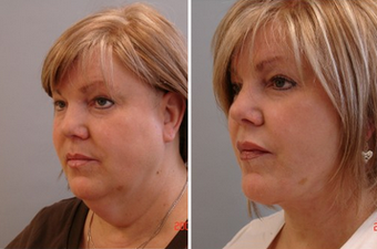 Mid Face Cheek Lift before 1360159