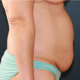 35-44 year old woman treated with Tummy Tuck before 3554393