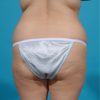 25-34 year old woman treated with Brazilian Butt Lift before 3292855