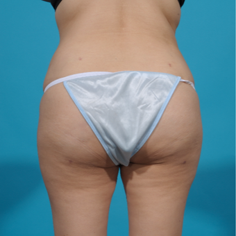 25-34 year old woman treated with Brazilian Butt Lift after 3292855