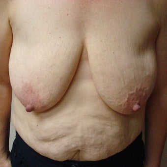 45-54 year old woman treated with Mentor Breast Implants before 2596219