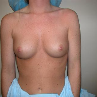 25-34 year old woman treated with Breast Augmentation before 3378419
