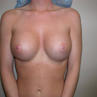 25-34 year old woman treated with Breast Augmentation after 3378419