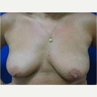 49 year old woman treated with Breast Lift with Implants before 3726842