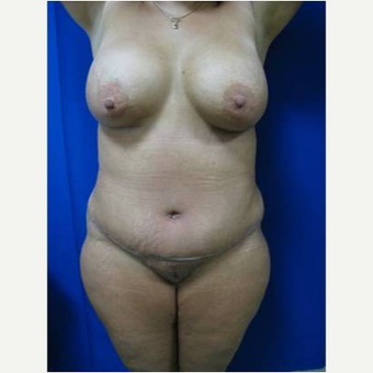 49 year old woman treated with Breast Lift with Implants after 3726842