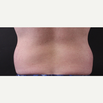 30 year old man treated with CoolSculpting before 3630351