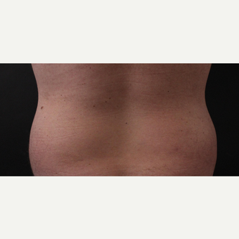 30 year old man treated with CoolSculpting after 3630351