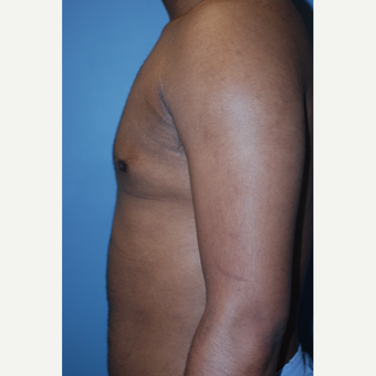 18-24 year old man treated with Liposuction after 3623626