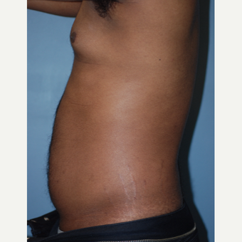 18-24 year old man treated with Liposuction before 3623626