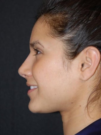 25-34 year old woman treated with Non Surgical Nose Job after 2728395