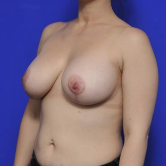 Augmentation Mastopexy after 3814657