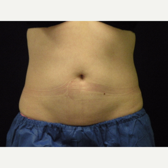 25-34 year old woman treated with CoolSculpting after 3679804