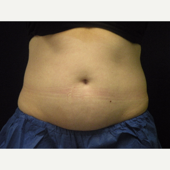 25-34 year old woman treated with CoolSculpting before 3679804