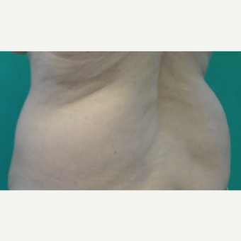 55-64 year old woman treated with SculpSure before 3251743