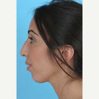 25-34 year old woman treated with Rhinoplasty before 3691142