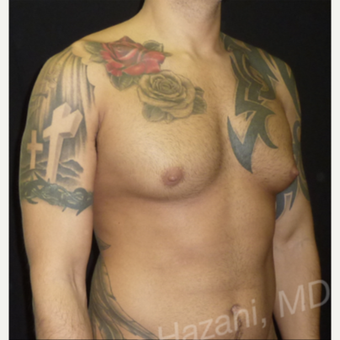 35-44 year old man treated with Male Breast Reduction before 3351886