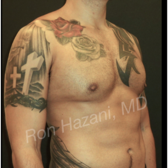 35-44 year old man treated with Male Breast Reduction after 3351886