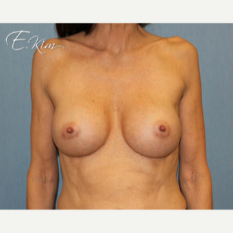 25-34 year old woman treated with Breast Augmentation after 3663264