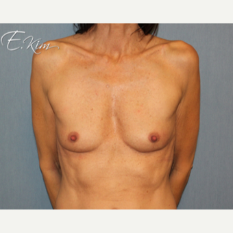 25-34 year old woman treated with Breast Augmentation before 3663264