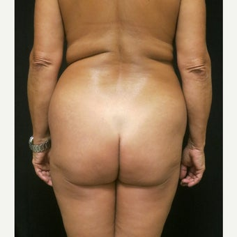 45-54 year old woman treated with Butt Augmentation before 1536199