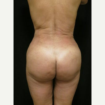 45-54 year old woman treated with Butt Augmentation after 1536199