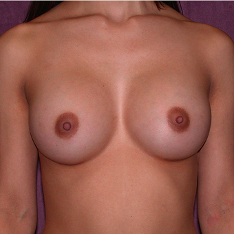 Breast Implants after 3033247