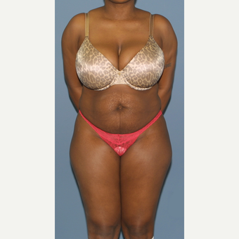 25-34 year old woman treated with Tummy Tuck before 3564577