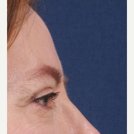 Side view after upper and lower eyelid surgery after 3135457