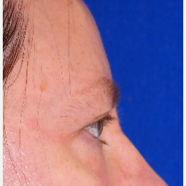 Side view after upper and lower eyelid surgery before 3135457