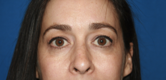 35-44 year old woman treated with Eyelid Surgery before 3621128